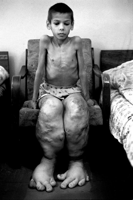 Disastro Chernobyl effetti sulle persone