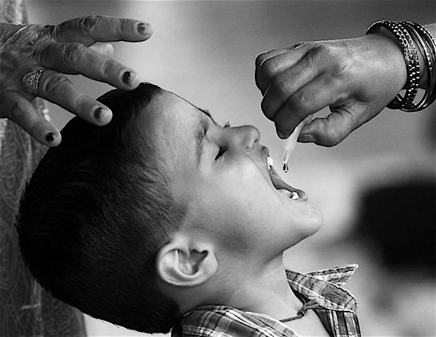 poliomileite